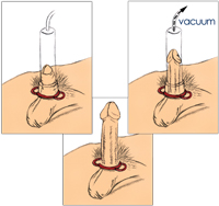 What to use for a penis